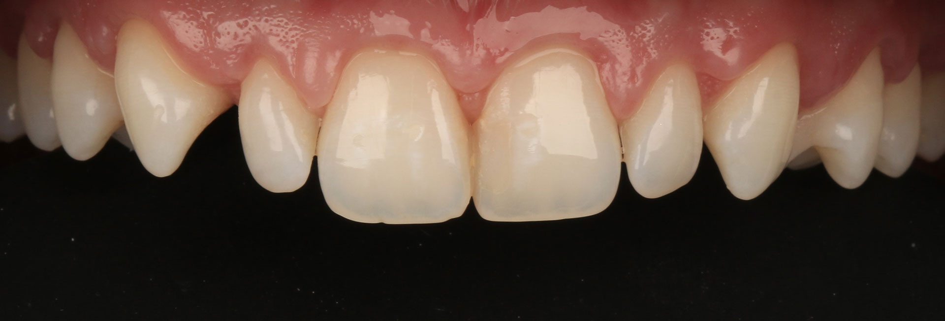 dentes-depois-pos-gengivectomia-CT